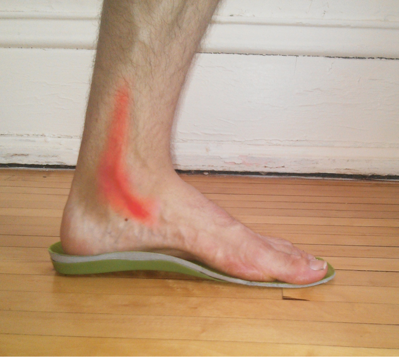How Does Running Affect Me If I Have Flat Feet in 2020?